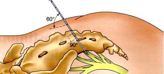 Neuro-modulazione sacrale