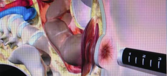 Anoscopia